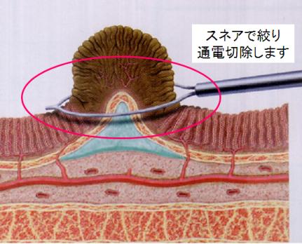 大腸 ポリープ 切除 術
